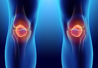 Clinical image of bone structure of knees